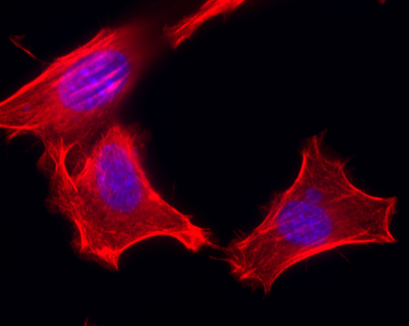 100x magnification of mouse embryonic fibroblasts stained with a dye for the actin protein cytoskeleton (RED) and nuclear DNA (BLUE)